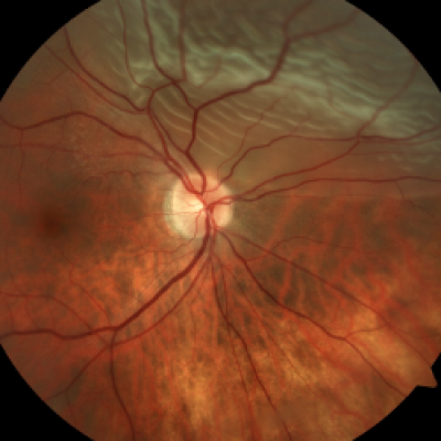 retinal detachment - retina associates of st. louis, Skeleton